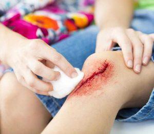 Очищение раны