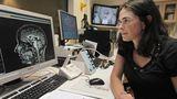 Бразильские ученые заявили о способности коронавируса вызывать шизофрению 1